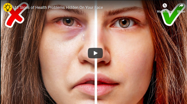 11 Signs of Health Problems Hidden On Your Face